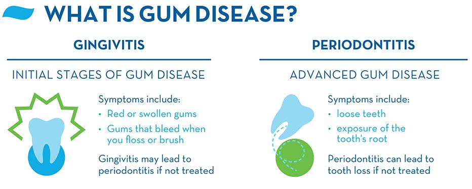 what are gingivitis and gum disease dr nechupadam