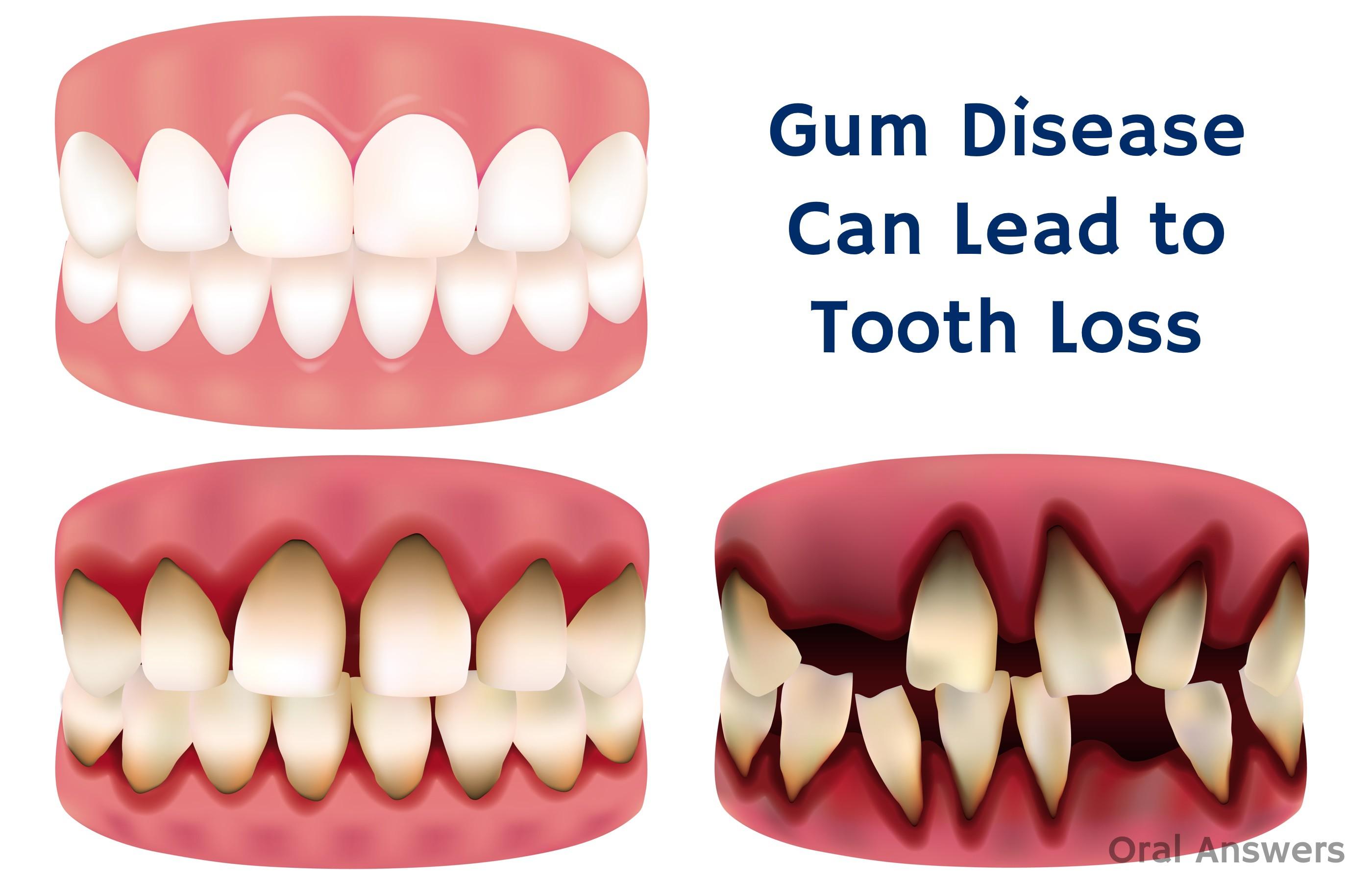 Как сделать чтобы не шатался зуб 836